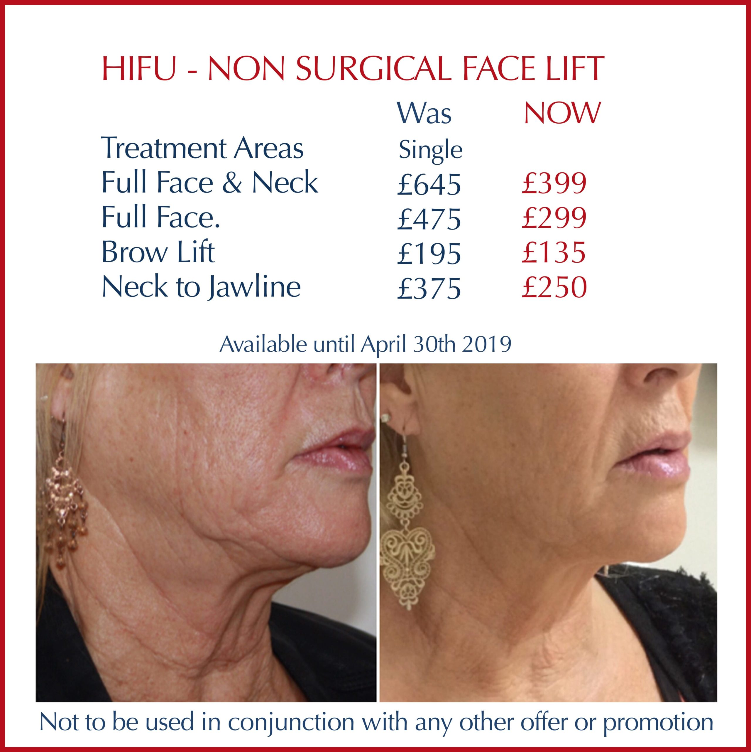 A before and after photo of a lady who has had HIFU