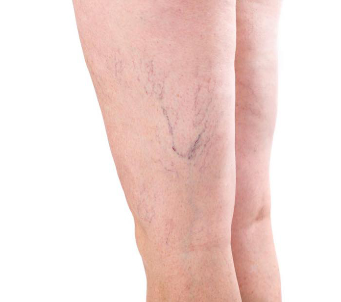 a pair of legs showing red veins waiting for red vein removal treatment